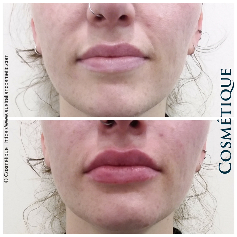 COSMETIQUE LIP FILLER BEFORE AFTER 044.png