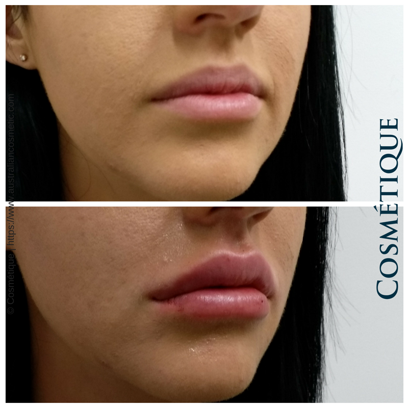 COSMETIQUE LIP FILLER BEFORE AFTER 046.png