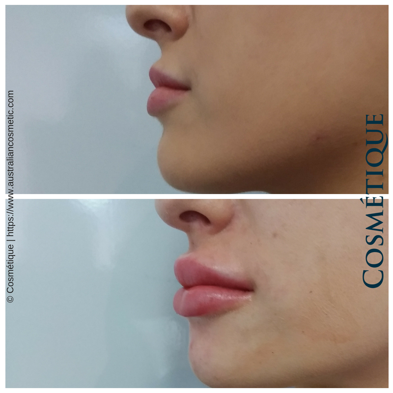 COSMETIQUE LIP FILLER BEFORE AFTER 047.png