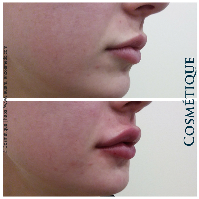 COSMETIQUE LIP FILLER BEFORE AFTER 049.png