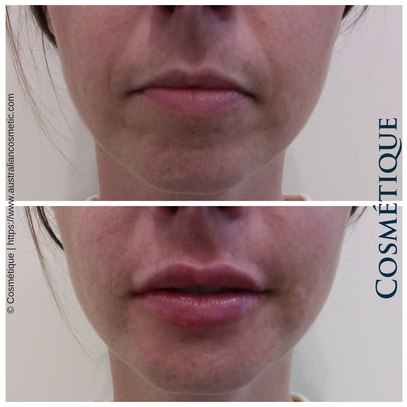 COSMETIQUE LIP FILLER BEFORE AFTER 050.png
