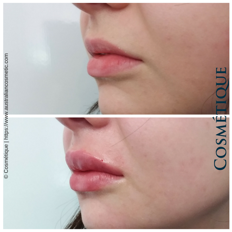 COSMETIQUE LIP FILLER BEFORE AFTER 051.png