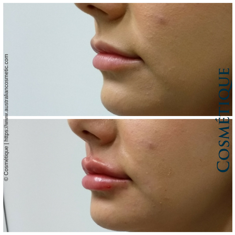 COSMETIQUE LIP FILLER BEFORE AFTER 052.png