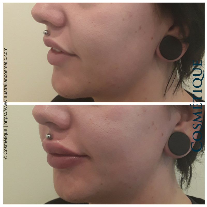 COSMETIQUE LIP FILLER BEFORE AFTER 053.png
