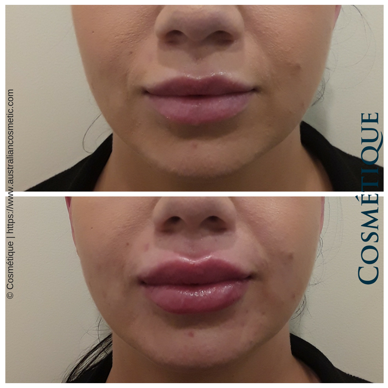 COSMETIQUE LIP FILLER BEFORE AFTER 054.png