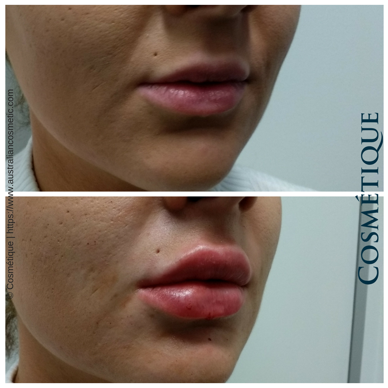 COSMETIQUE LIP FILLER BEFORE AFTER 056.png