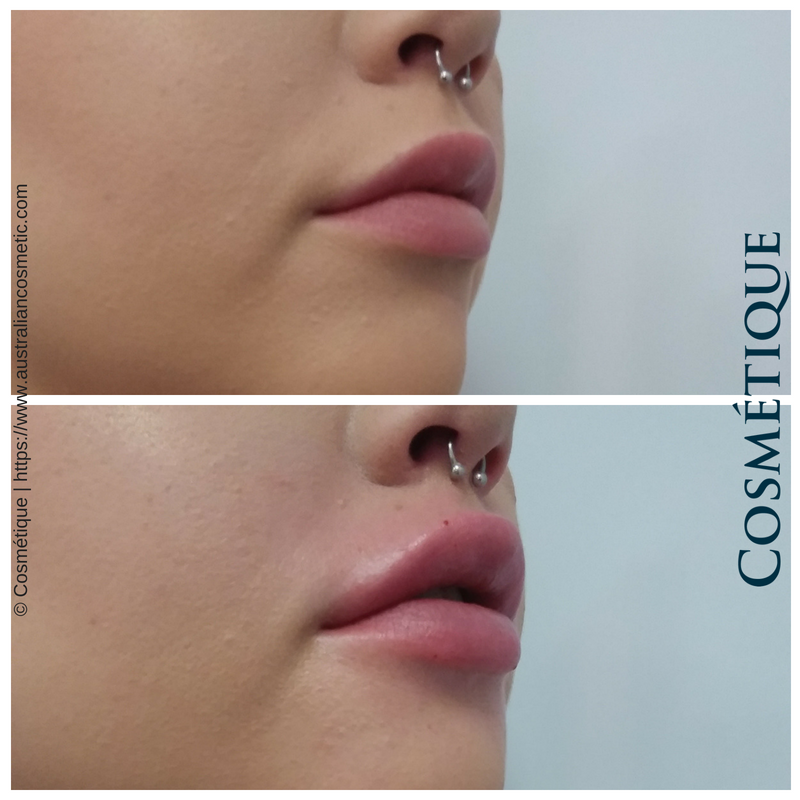 COSMETIQUE LIP FILLER BEFORE AFTER 057.png
