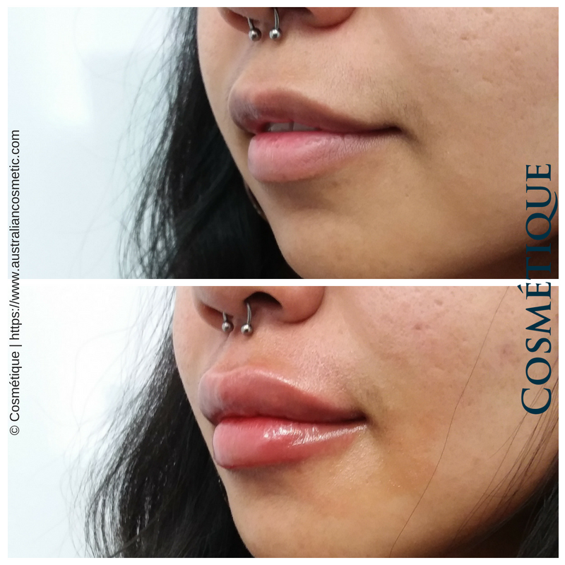 COSMETIQUE LIP FILLER BEFORE AFTER 058.png