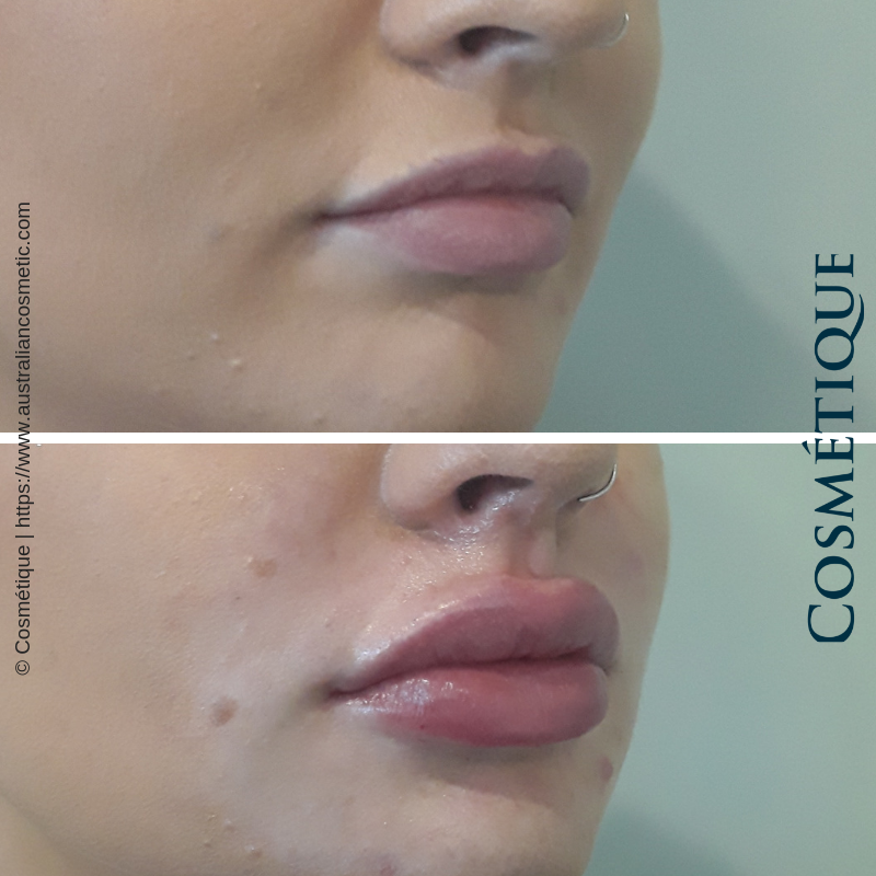 COSMETIQUE LIP FILLER BEFORE AFTER 001.png
