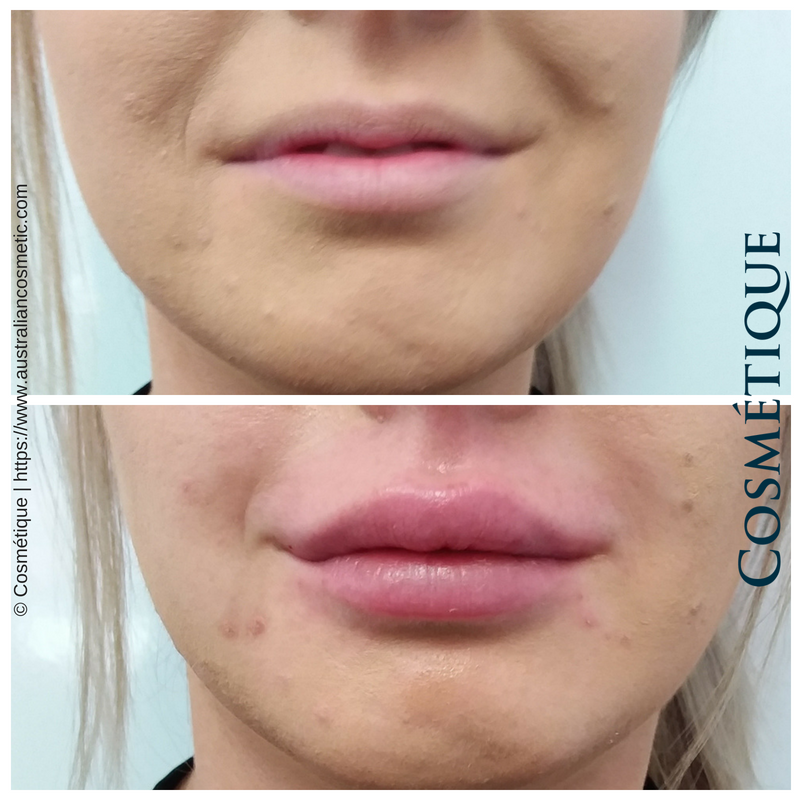 COSMETIQUE LIP FILLER BEFORE AFTER 002.png