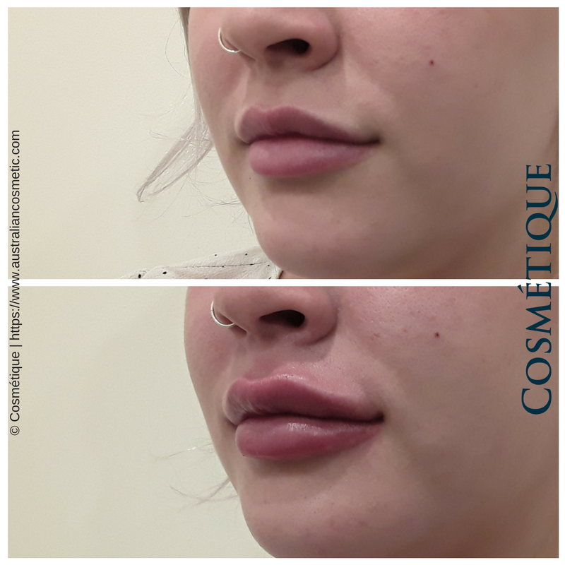 COSMETIQUE LIP FILLER BEFORE AFTER 003.png