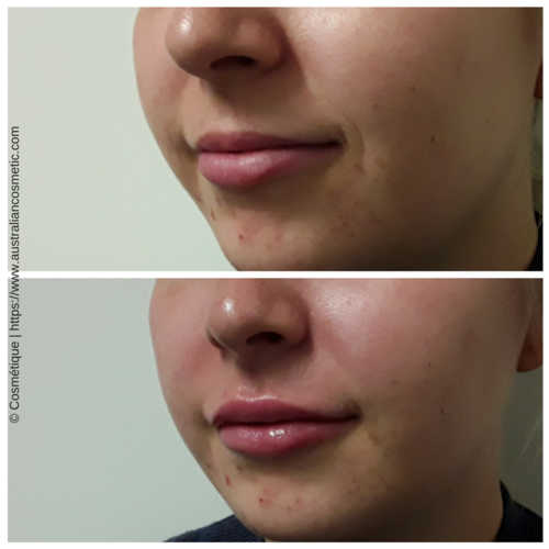 Lip Injections | Lip Fillers Perth, Brisbane, Melbourne & More