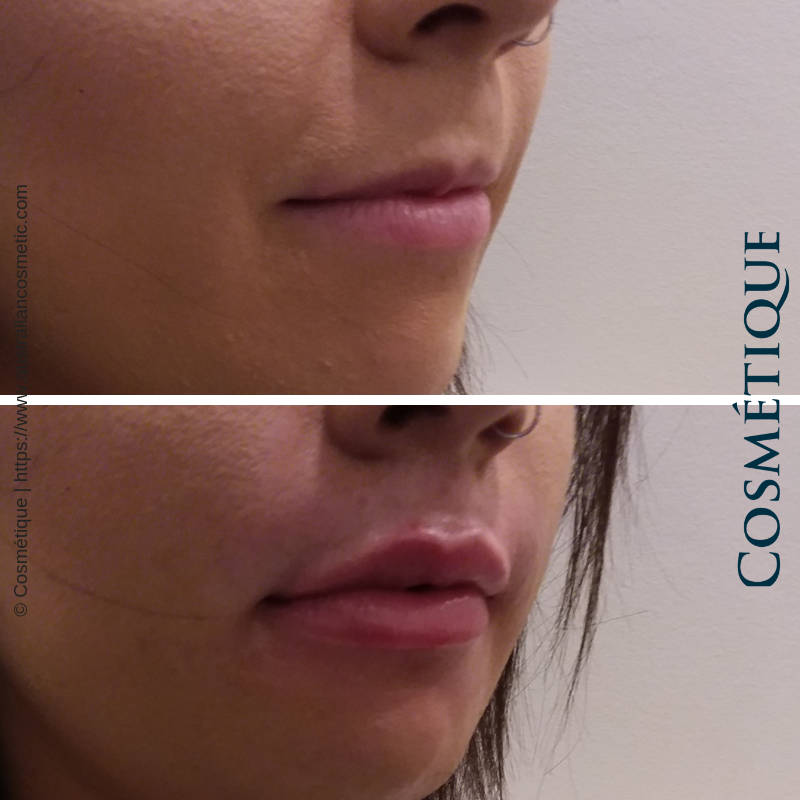 COSMETIQUE LIP FILLER BEFORE AFTER 005.png