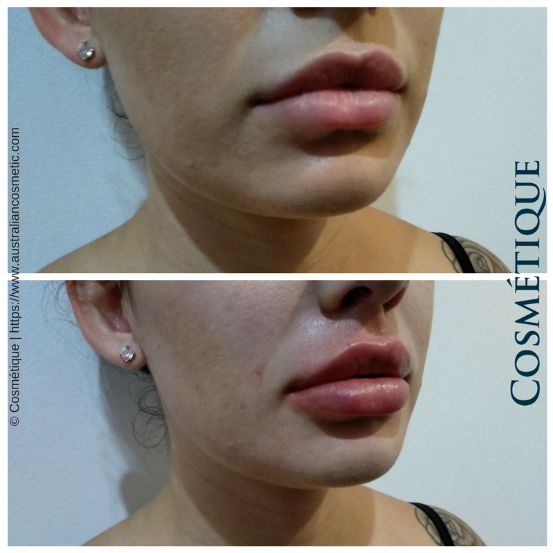 COSMETIQUE LIP FILLER BEFORE AFTER 007.png