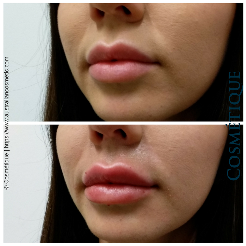 COSMETIQUE LIP FILLER BEFORE AFTER 009.png