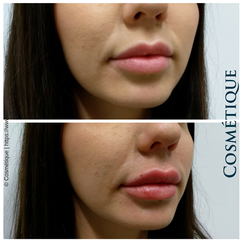 COSMETIQUE LIP FILLER BEFORE AFTER 008.png