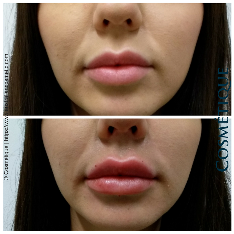 COSMETIQUE LIP FILLER BEFORE AFTER 010.png