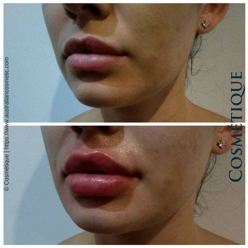 COSMETIQUE LIP FILLER BEFORE AFTER 011.png