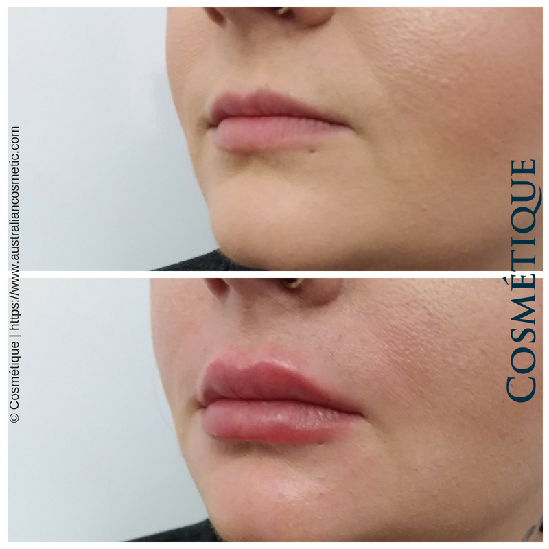 COSMETIQUE LIP FILLER BEFORE AFTER 012.png