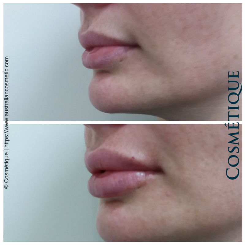 COSMETIQUE LIP FILLER BEFORE AFTER 013.png