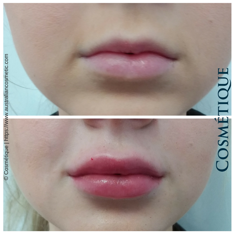 COSMETIQUE LIP FILLER BEFORE AFTER 014.png