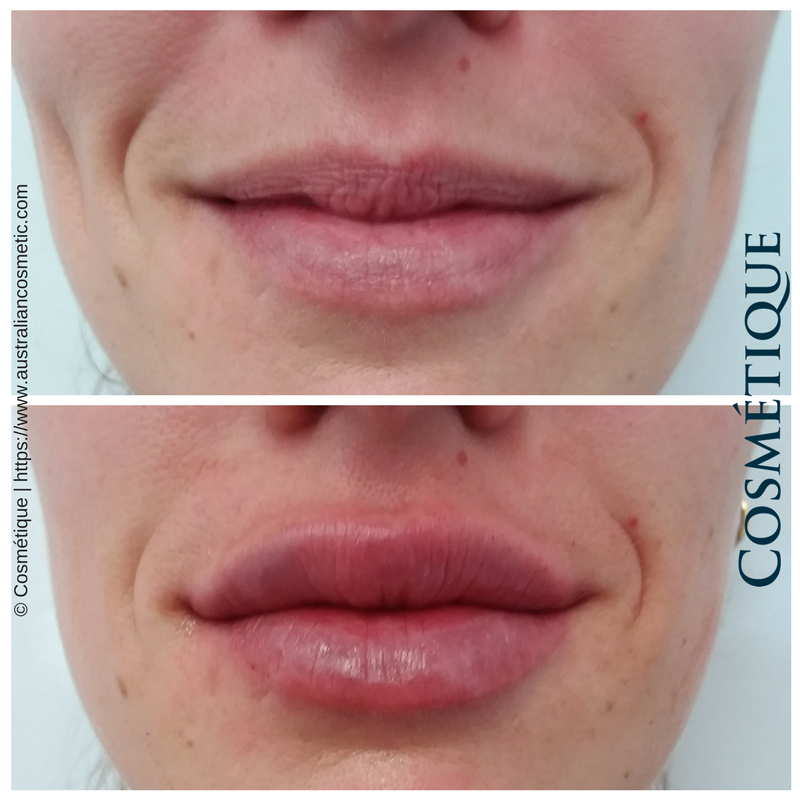 COSMETIQUE LIP FILLER BEFORE AFTER 015.png