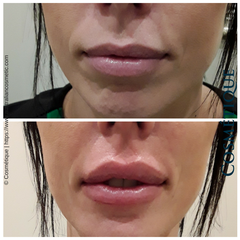 COSMETIQUE LIP FILLER BEFORE AFTER 017.png