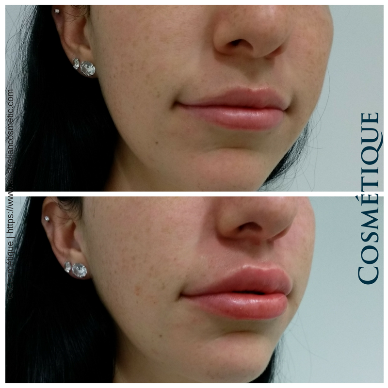 COSMETIQUE LIP FILLER BEFORE AFTER 020.png