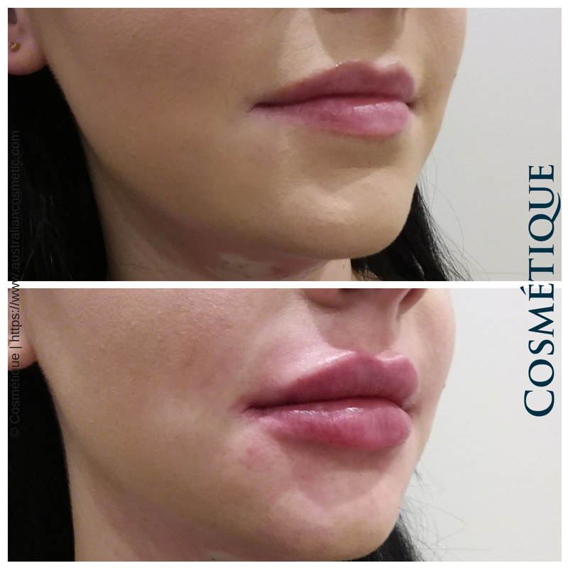 COSMETIQUE LIP FILLER BEFORE AFTER 021.png