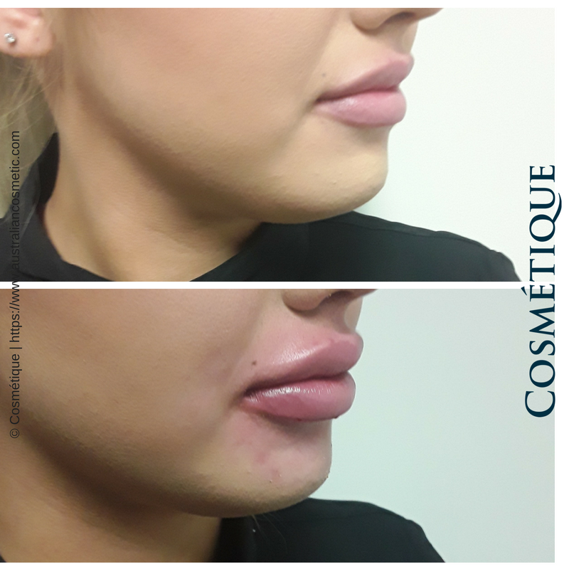 COSMETIQUE LIP FILLER BEFORE AFTER 022.png