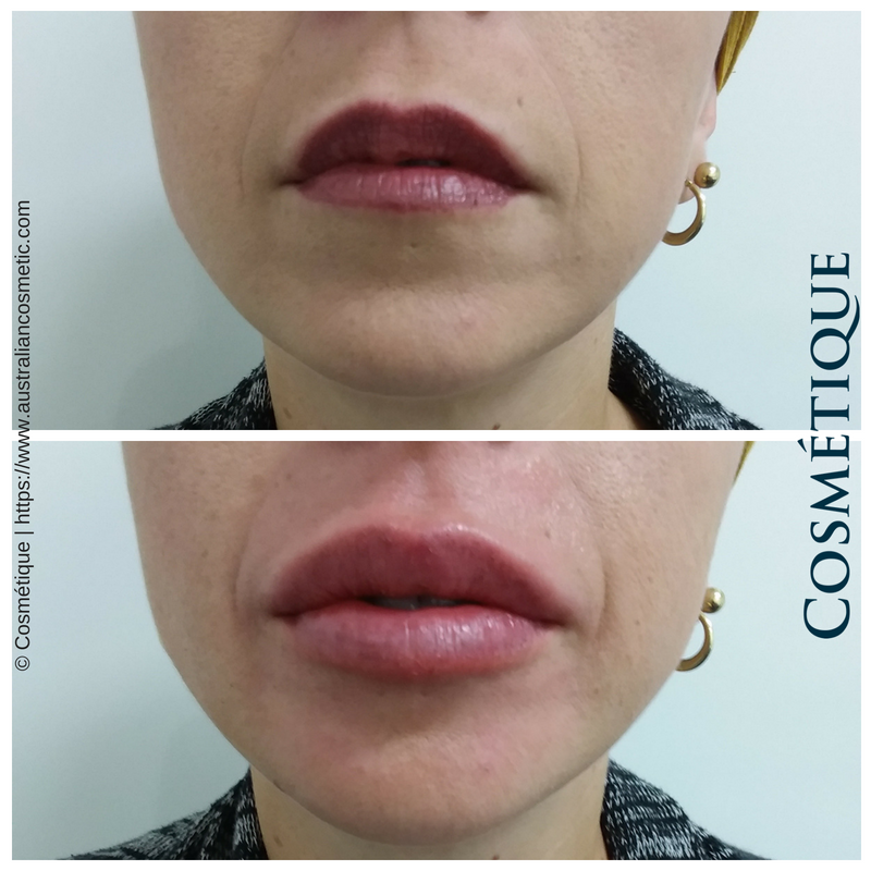 COSMETIQUE LIP FILLER BEFORE AFTER 023.png