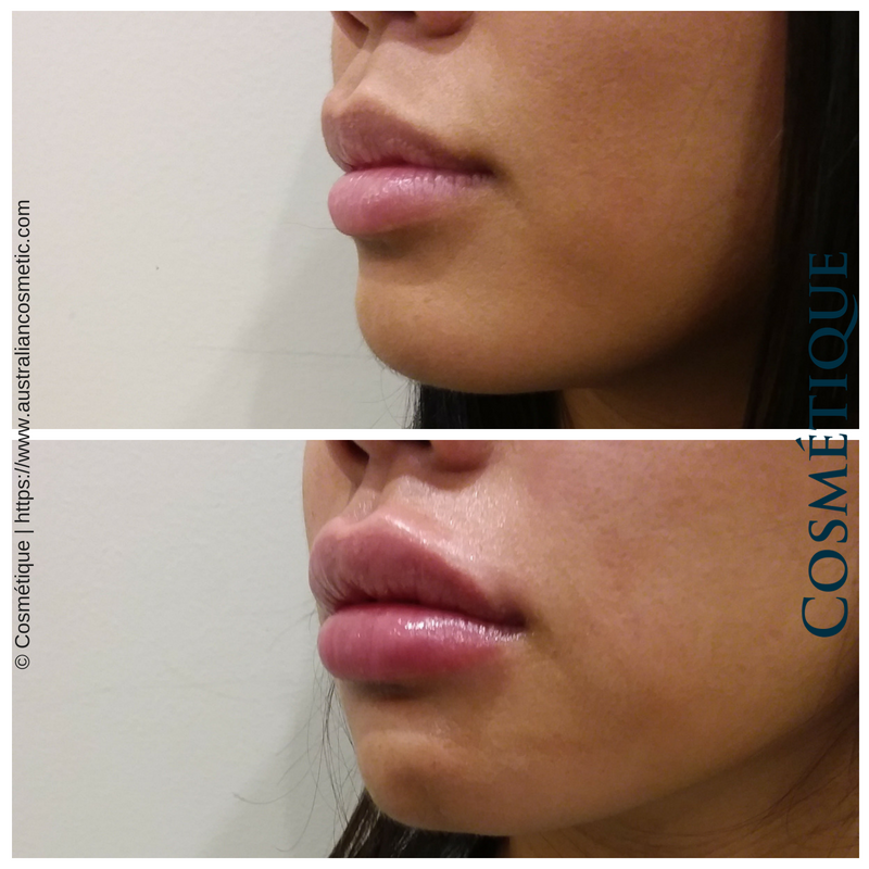 COSMETIQUE LIP FILLER BEFORE AFTER 024.png