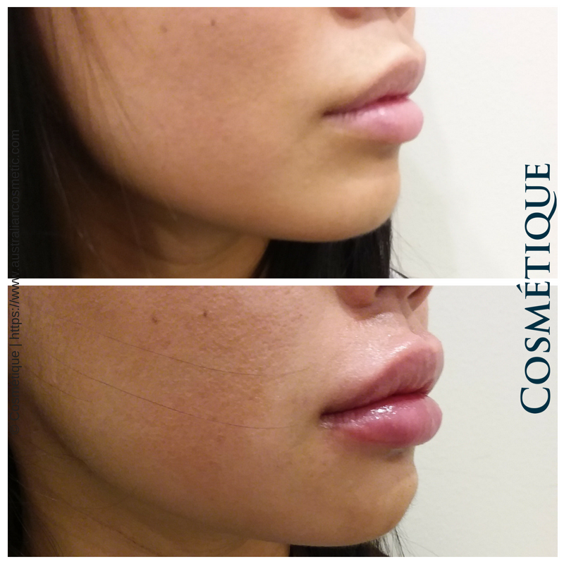 COSMETIQUE LIP FILLER BEFORE AFTER 025.png