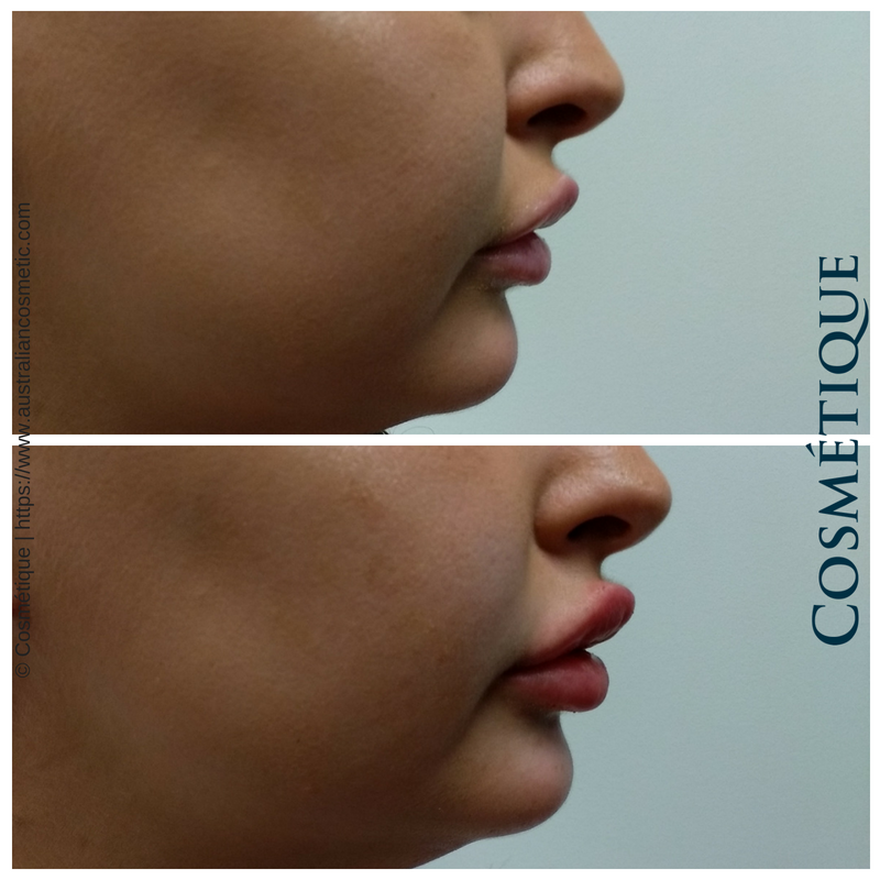 COSMETIQUE LIP FILLER BEFORE AFTER 026.png