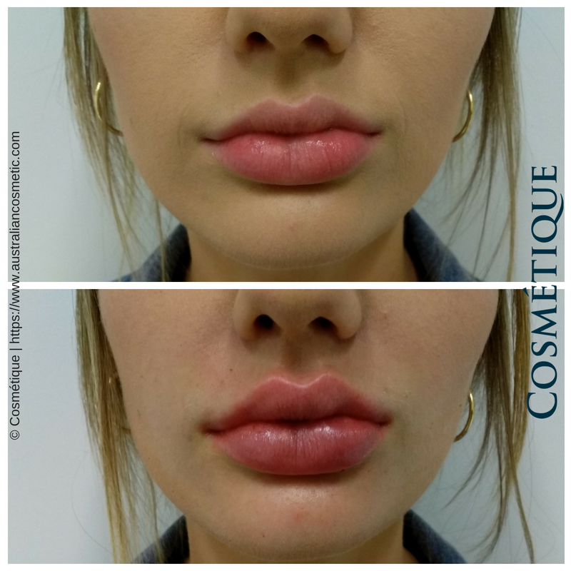 Afterpay Lip Fillers Sydney