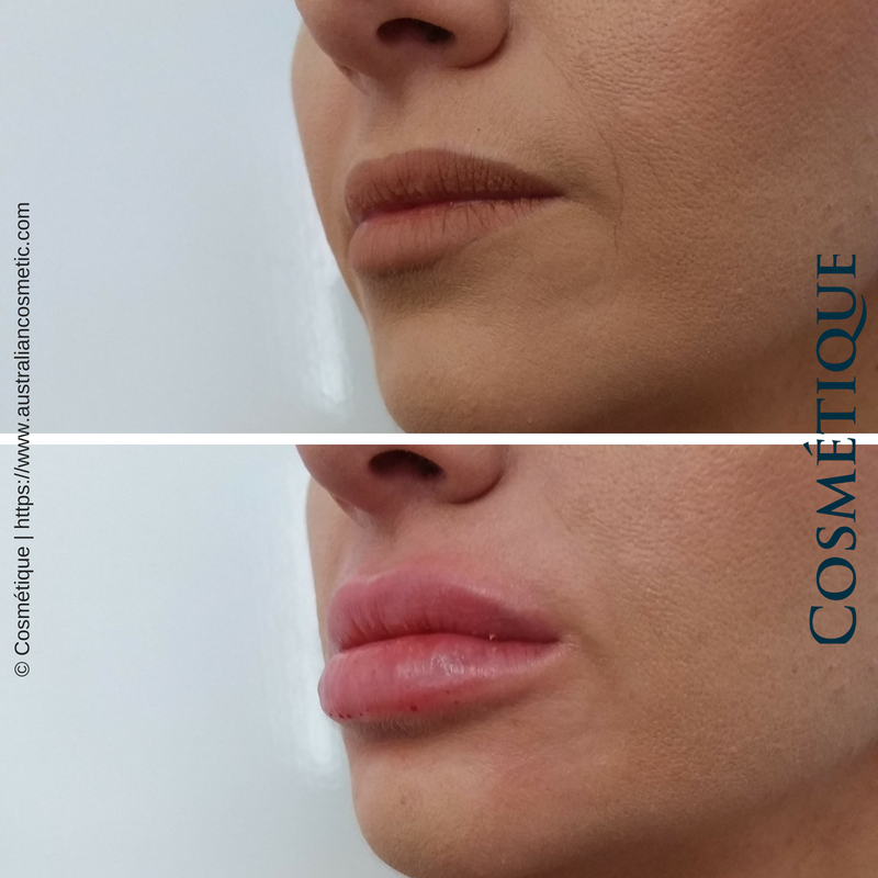COSMETIQUE LIP FILLER BEFORE AFTER 028.png