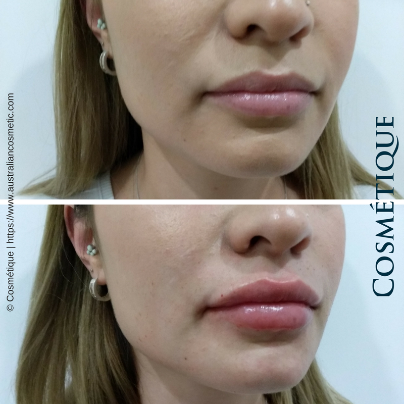 COSMETIQUE LIP FILLER BEFORE AFTER 029.png