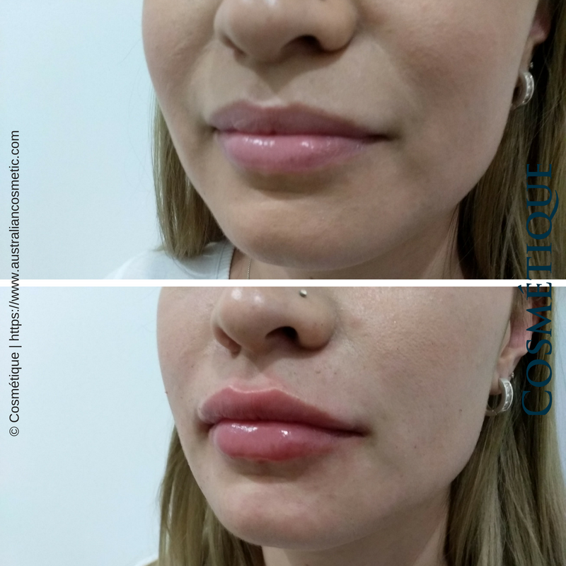 COSMETIQUE LIP FILLER BEFORE AFTER 030.png