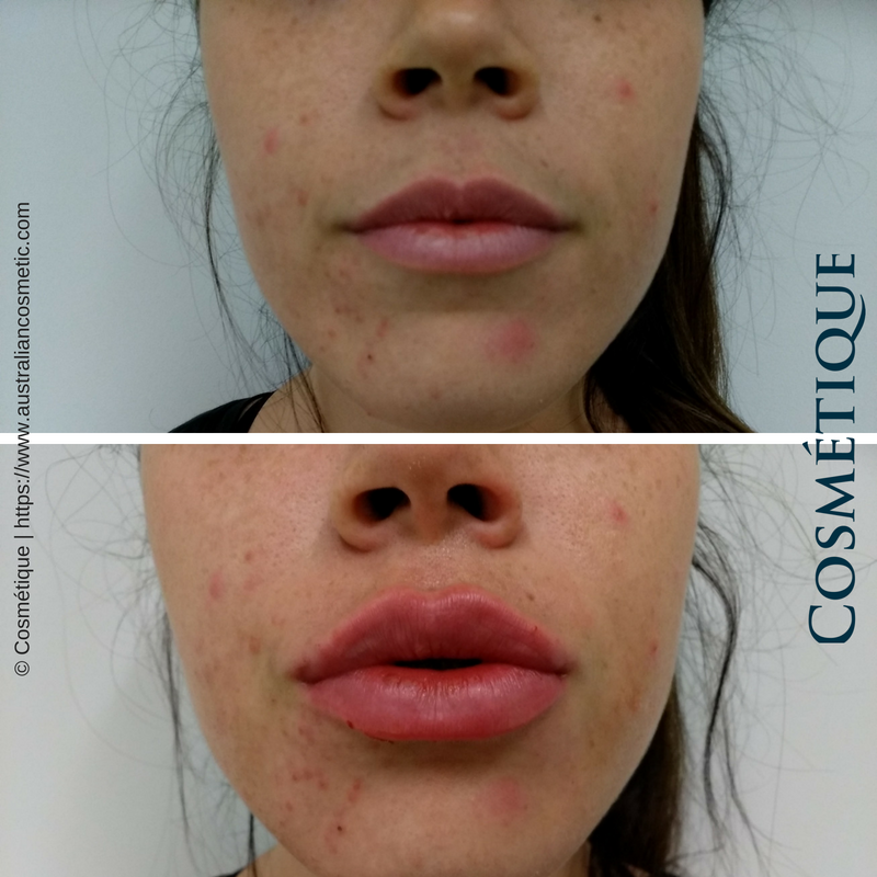 COSMETIQUE LIP FILLER BEFORE AFTER 031.png