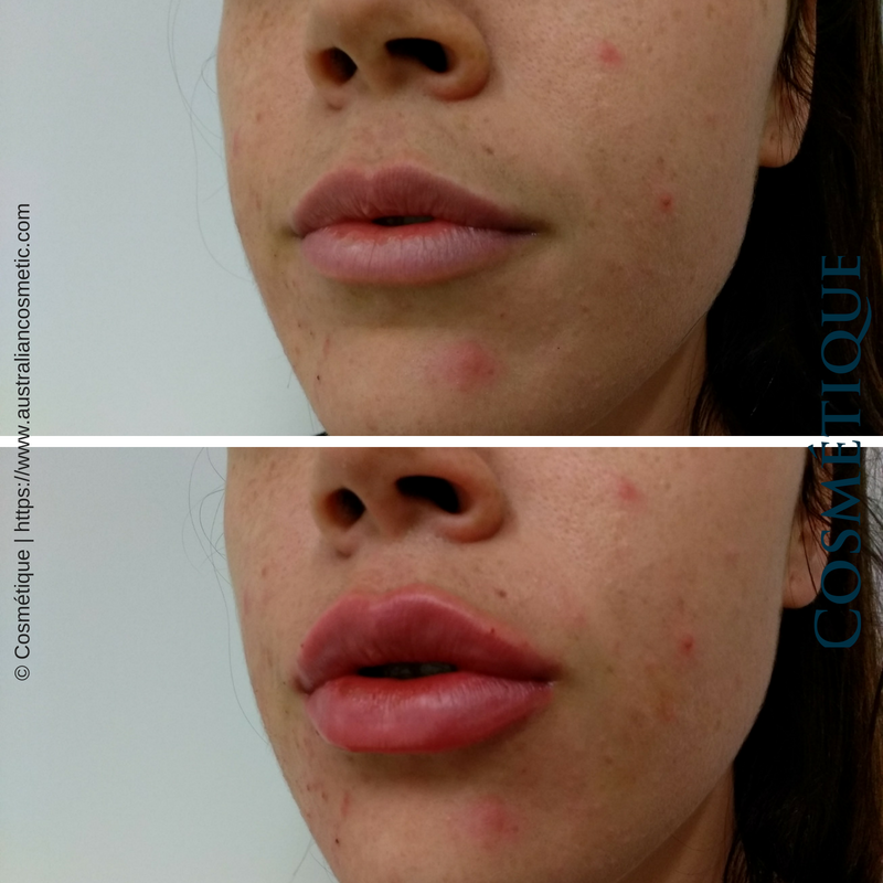 COSMETIQUE LIP FILLER BEFORE AFTER 032.png