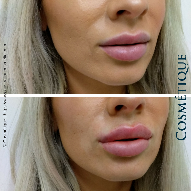 COSMETIQUE LIP FILLER BEFORE AFTER 034.png