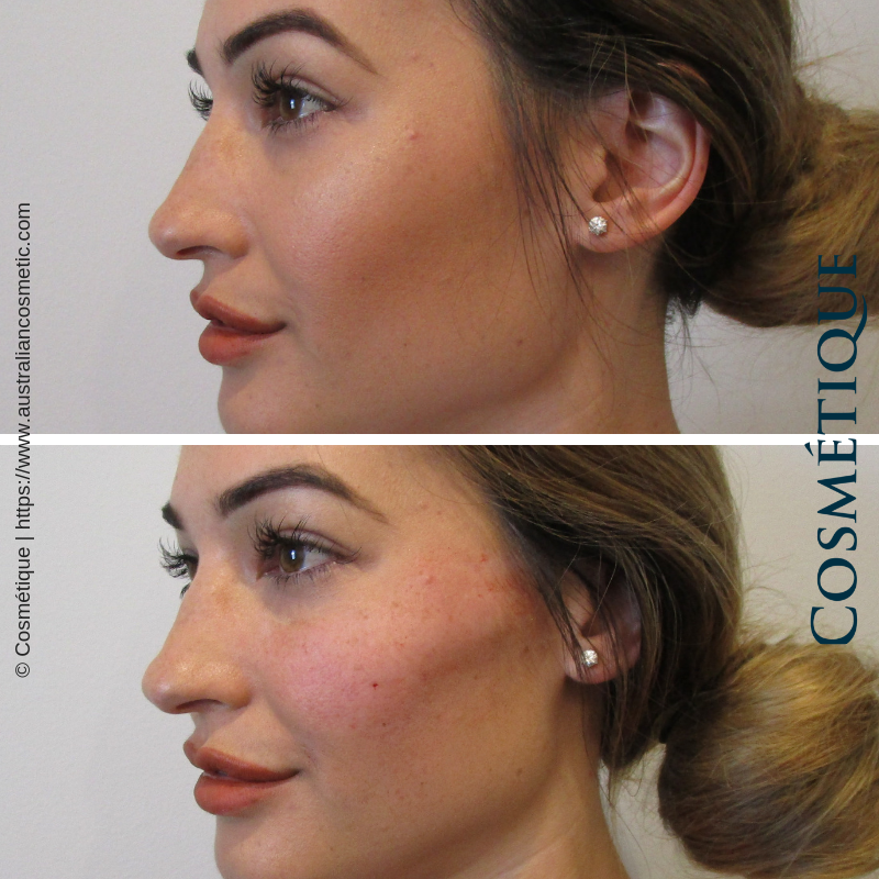 Cosmetique Before After Cheek Fillers 001.png