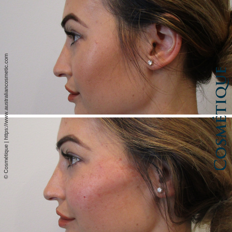 Cosmetique Before After Cheek Fillers 002.png