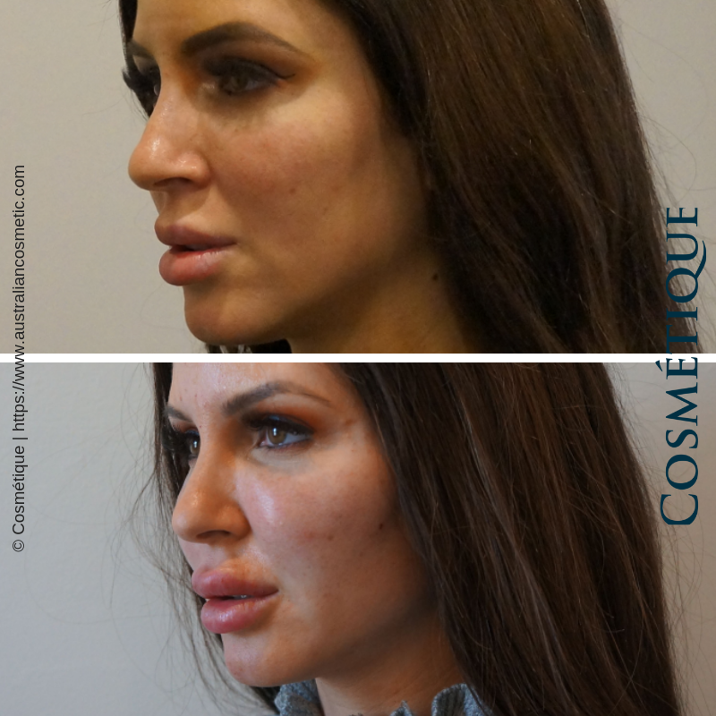 Cosmetique Before After Cheek Fillers 004.png