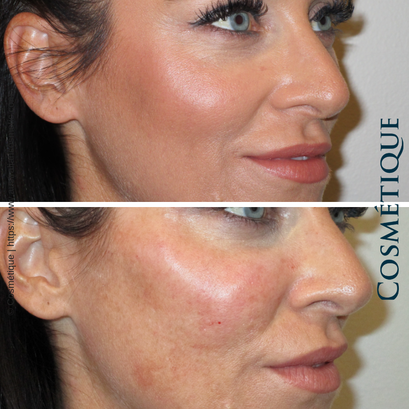 Cosmetique Before After Cheek Fillers 003.png