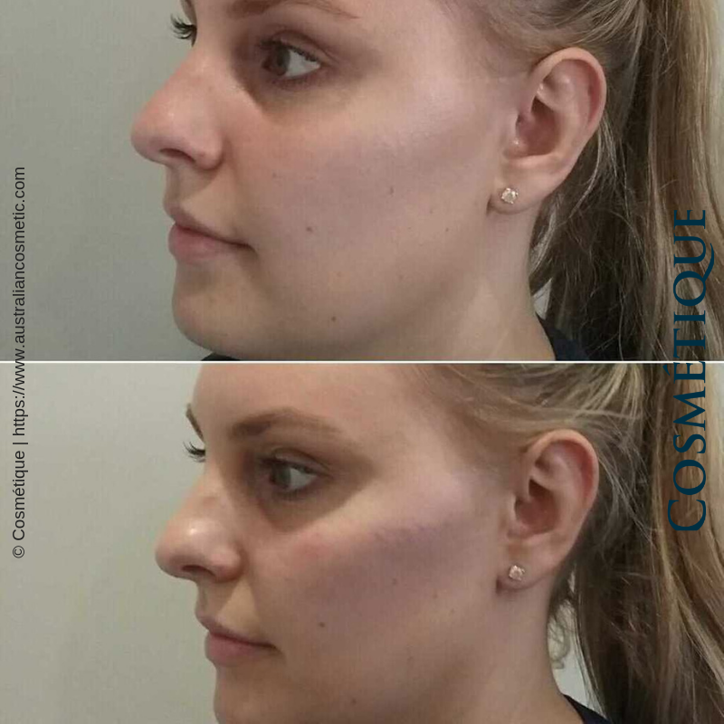 Cosmetique Before After Cheek Fillers 006.png