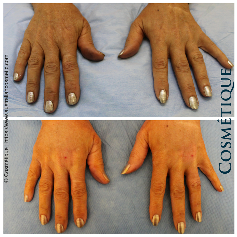 fat transfer to hands before and after