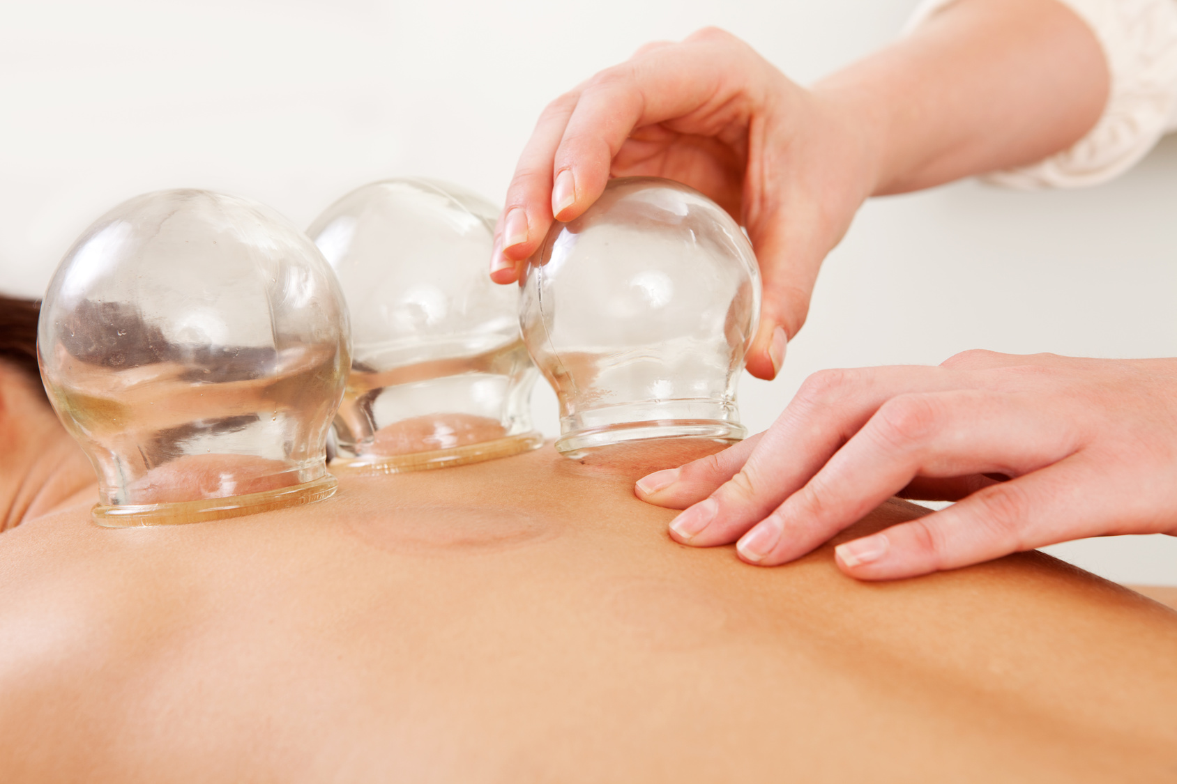 Cupping - Cupping is a technique that involves glass cups and a flame. By placing a flame quickly into a glass cup before placing the cup on the skin, a vacuum gets created which pulls the skin into the cup. This suction pulls impurities from the skin and brings space in the fascia layer. Cupping is used to create blood circulation in cases of pain and tightness. It is also used to remove impurities in cases of coughs and colds so that the body is able to heal quicker.