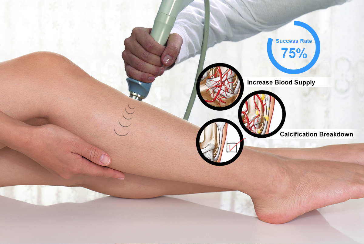 shock_wave_therapy_shin_spints.jpg