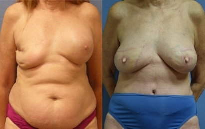 Breast Reconstruction Tampa FL